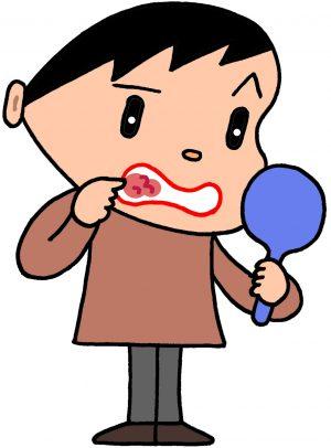 喉にできた赤い斑点はいったい何の病気?