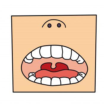 喉に白い斑点ができる5つの原因と対処法!