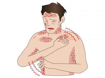 大人の水疱瘡の症状と合併症を解説!跡を残さないための注意点とは?