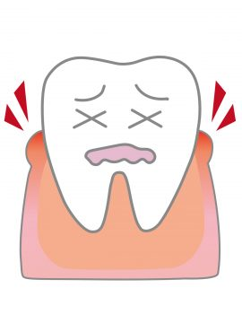 歯茎がかゆい9つの原因と対処法!