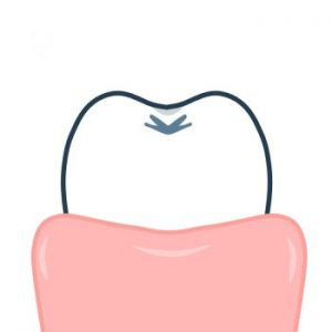 【保存版】歯茎が白い8つの原因と対処法!